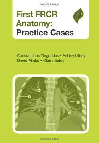 First FRCR Anatomy : Practice Cases By:Tingerides, Constantinos Eur:40,63 Ден2:2399