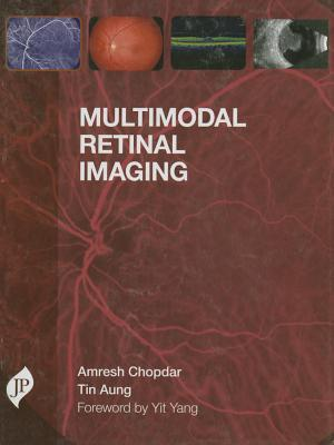 Multimodal Retinal Imaging By:Chopdar, Amresh Eur:154,46 Ден1:6499